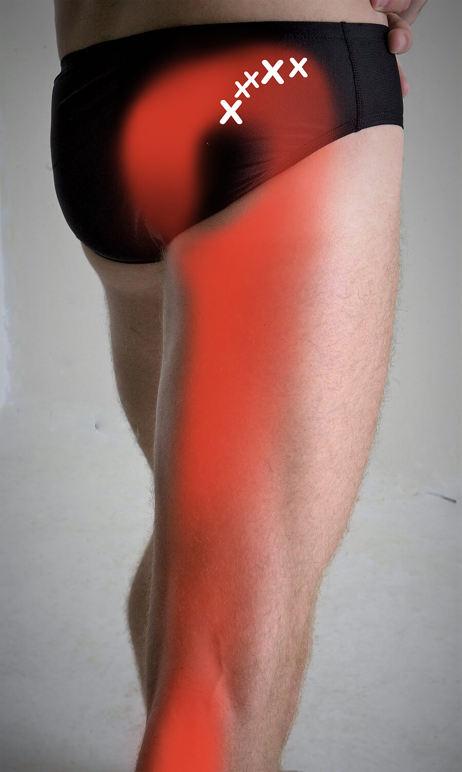 Gluteus Minimus Pain Pattern