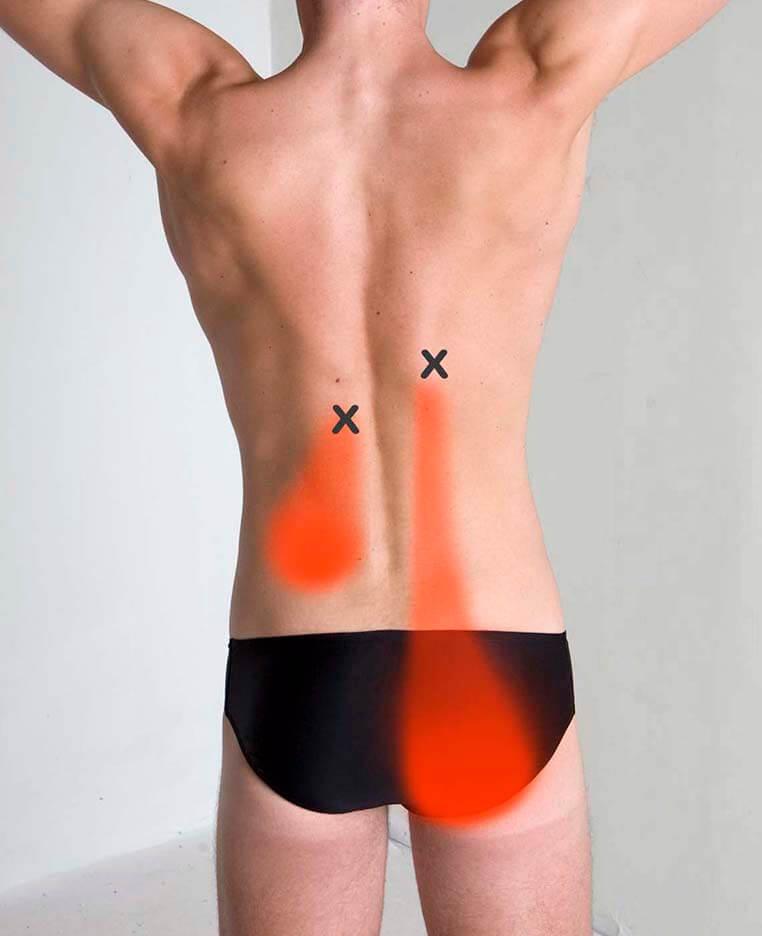 Longissimus Thoracis Pain Pattern