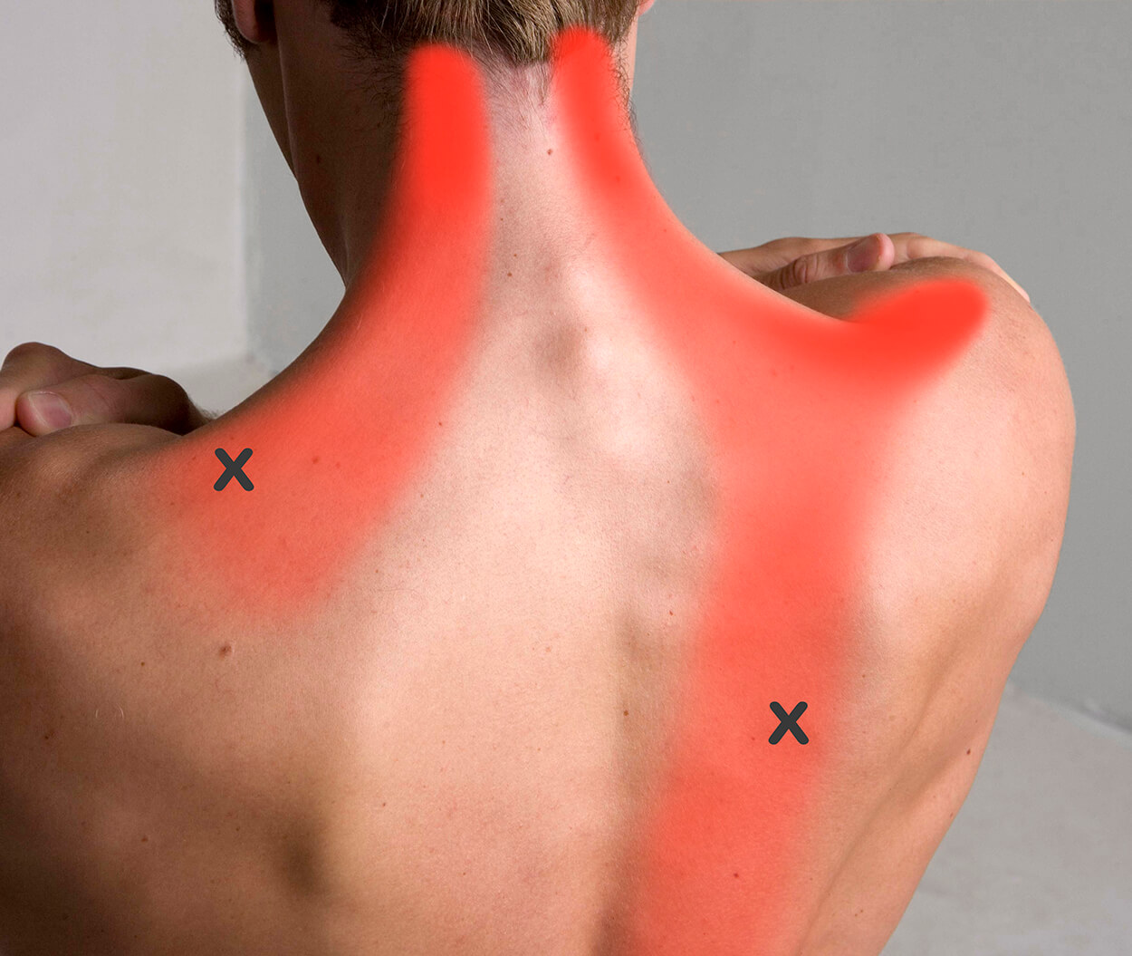 Trapezius Pain Pattern