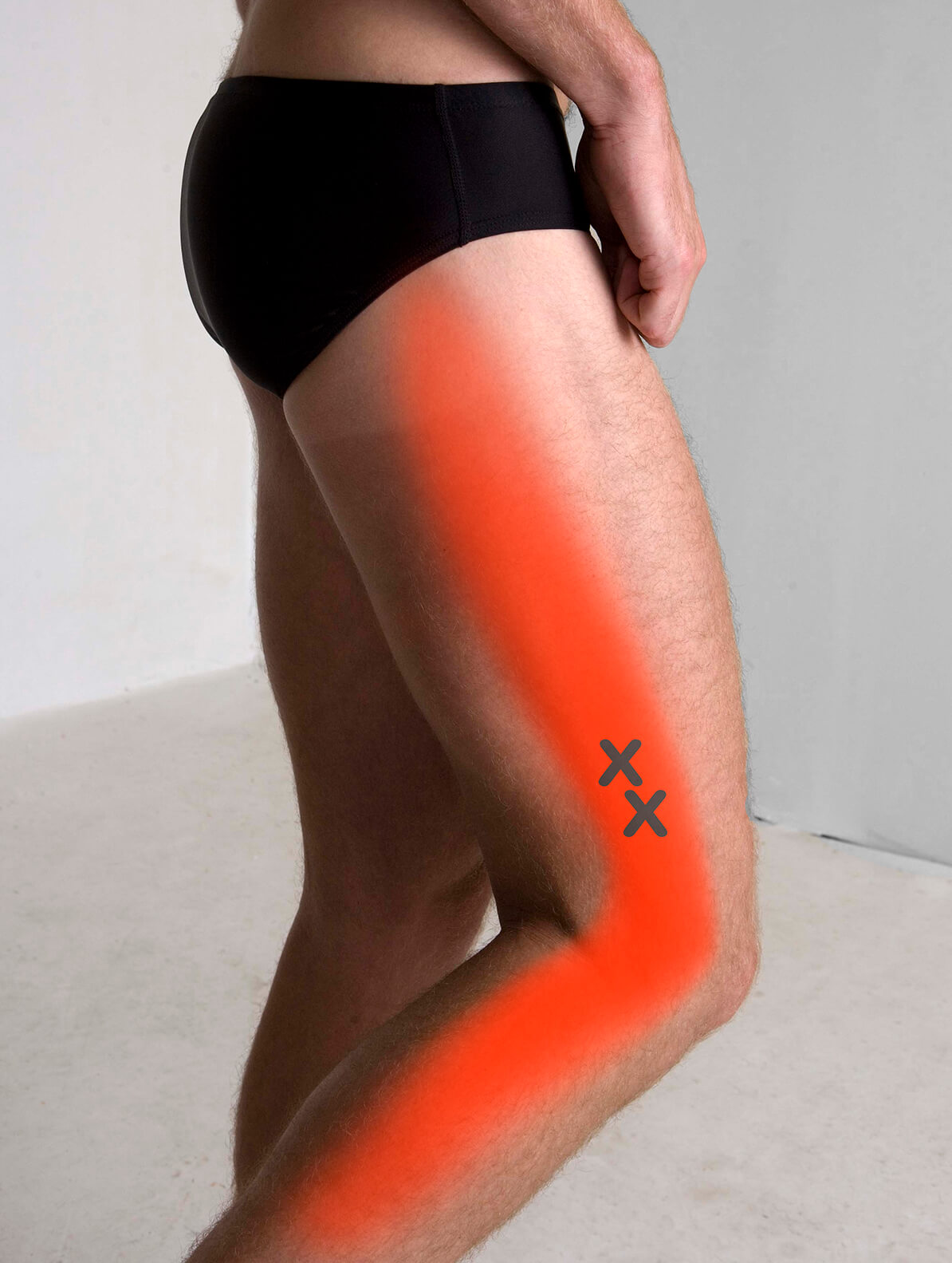 Vastus Lateralis Pain Pattern